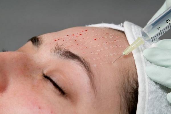 Одна процедура биоревитализации кожи лица стоит от 8 до 12 тысяч рублей