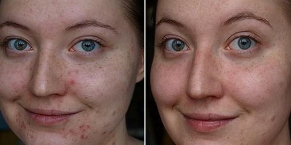 Огромный плюс атравматической чистки лица – отсутствие каких-либо следов после процедуры
