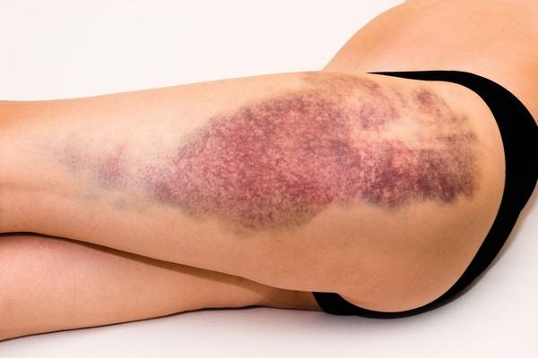 При повреждениях кожи любой массаж запрещен