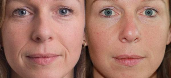 Фото до и после проведения мезотерапии №1