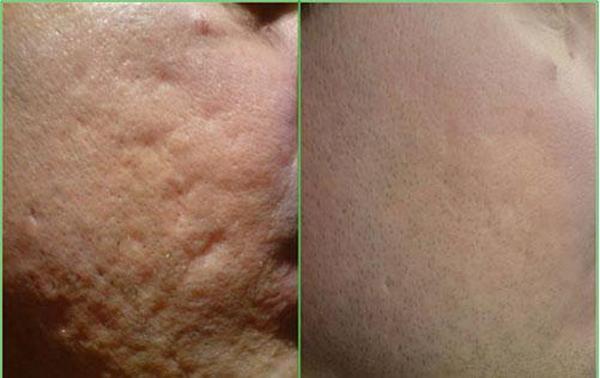 Неровности на кожи уходят самостоятельно – нужно лишь подождать