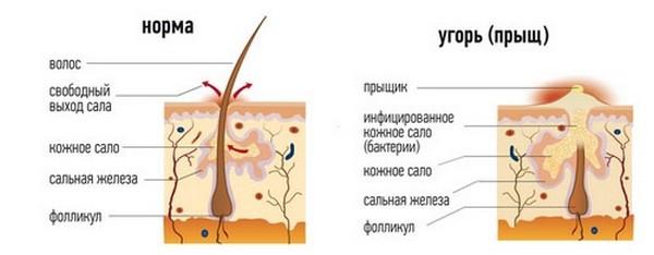 Если кожное сало вырабатывается в чрезмерном количестве, протоки сальных желез забиваются