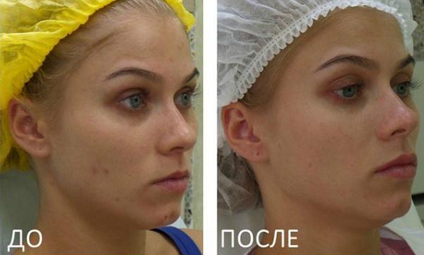 Фото до и после биоревитализации с использованием «Гилуаля»