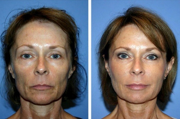 Фото до и после проведения биоревитализации №2