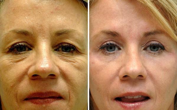 Фото до и после лазерной блефаропластики