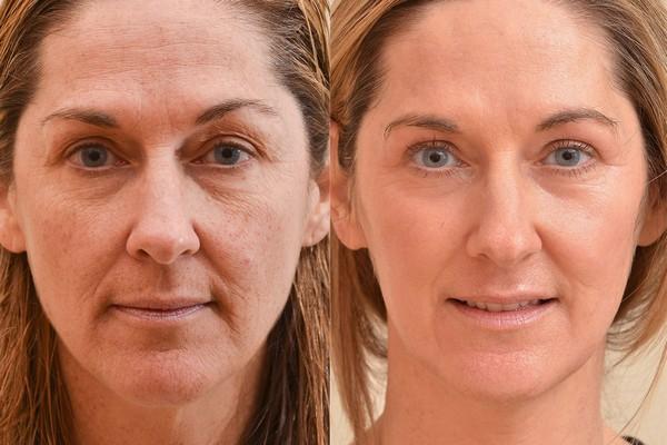Фото до и после ультразвуковой блефаропластики