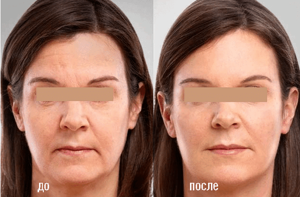 Фото до и после биоревитализации со средством «Бьютель» №2
