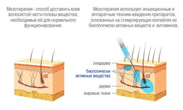При мезотерапии используют не только гиалуронат, но и другие вещества