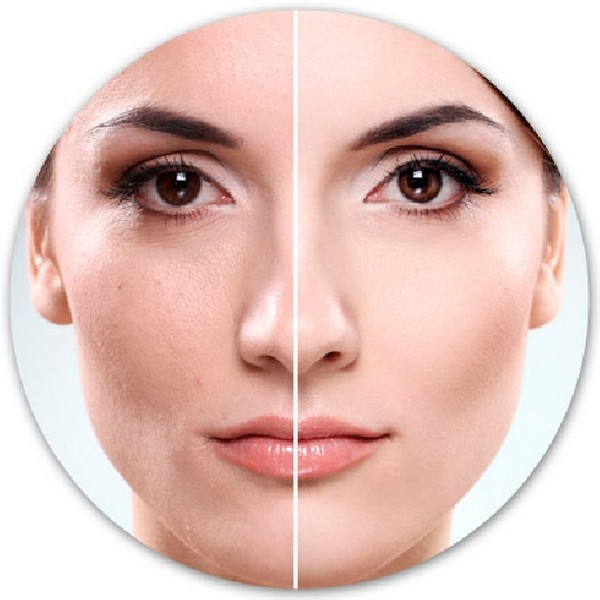 Оттенок кожи выравнивается в процессе проведения процедуры