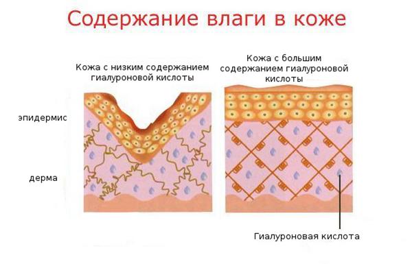 Поскольку гиалуроновой кислоты в организме с возрастом становится меньше, состояние кожи ухудшается