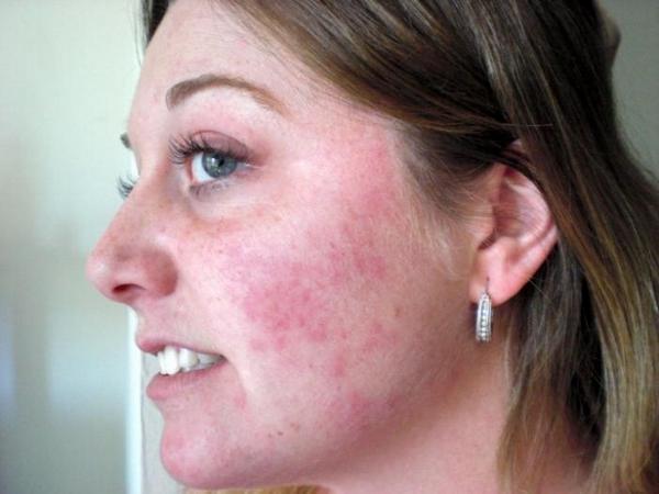 Важно избавиться от болезней кожи прежде, чем проходить процедуру биоревитализации