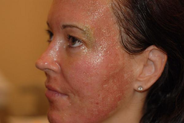 Чаще побочные эффекты возникают у людей с повышенной чувствительностью кожи