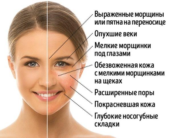 Спиртное губительно влияет на кожу человека