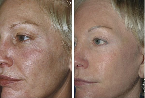 Биоревитализация действительно «возвращает» клетки кожи к жизни