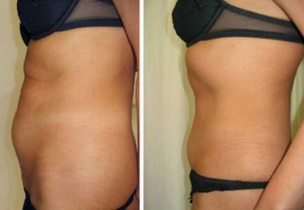 Такая процедура используется для похудения