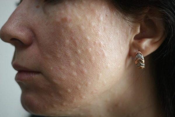 На коже могут появиться припухлости, но это временно