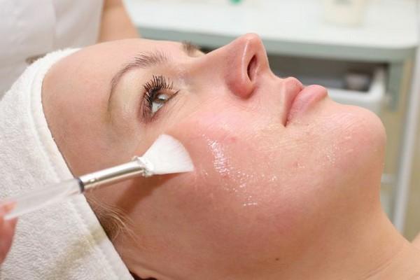 В ходе процедуры используют различные средства с содержанием кислот