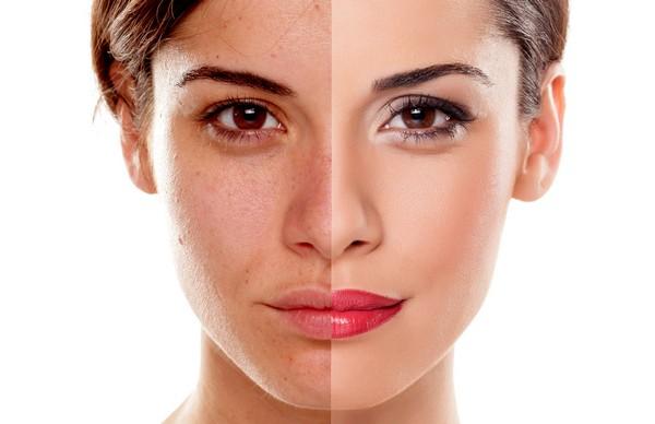 После процедуры кожа пациента приобретает прекрасный вид