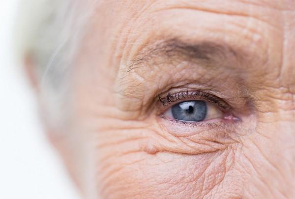 Морщины появляются из-за того, что гиалуроната в организме с возрастом становится меньше