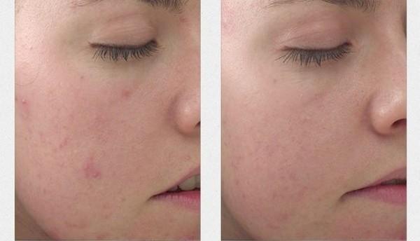 Фото до и после проведения карбокситерапии №1