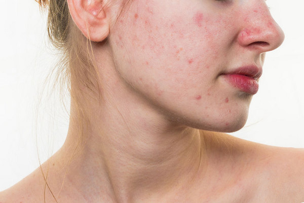 Если человек пользуется средствами, которые не подходят его коже, ее состояние может значительно ухудшиться