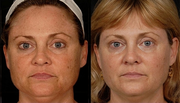 Фото до и после DROT-терапии