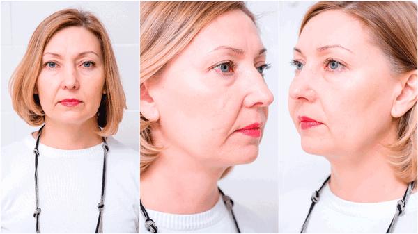 Фото до и после электроблефаропластики