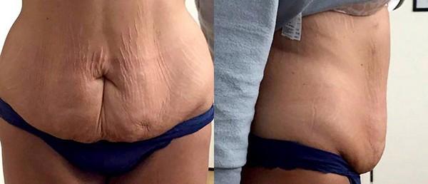 Слишком растянутую кожу не получится избавить от жировой прослойки только этой процедурой