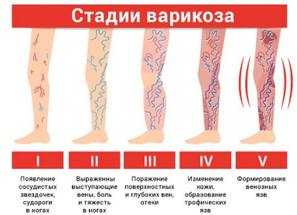Первые стадии варикоза можно вылечить этим массажем