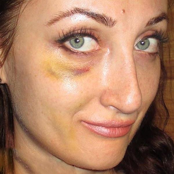 Побочные эффекты возникают при невнимательном рассмотрении специалистом особенностей организма пациента