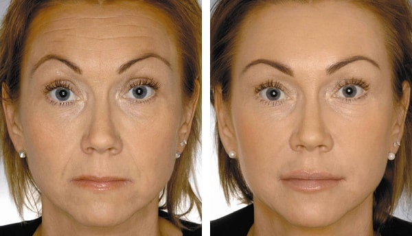 Фото до и после введения инъекций пептидов №1