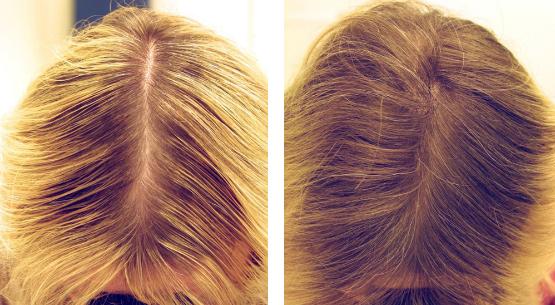 Фото до и после биоревитализации волос №1