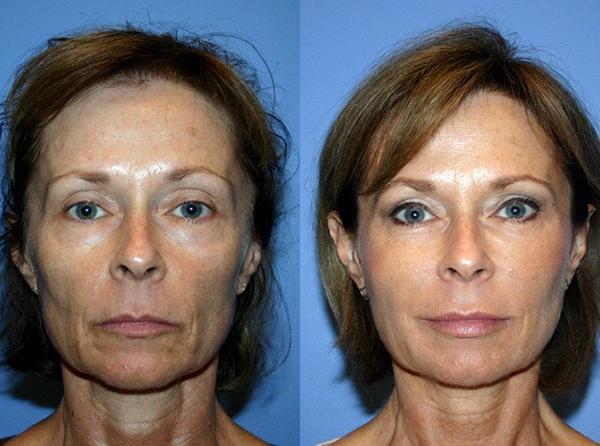 Фото до и после проведения плазмолифтинга №1