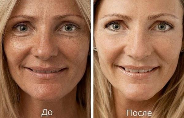 Фото до и после биоревитализации гиалуроновой кислотой №1