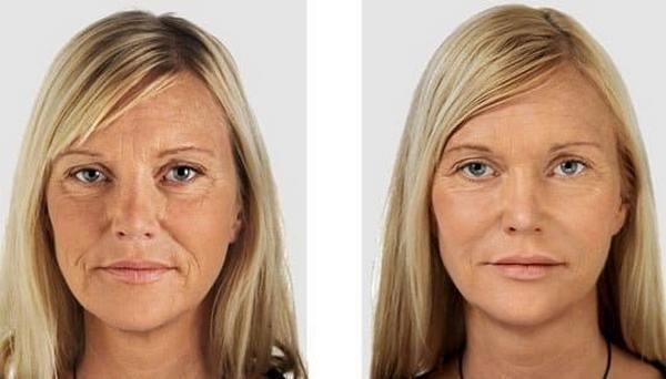 Фото до и после введения инъекций пептидов №2