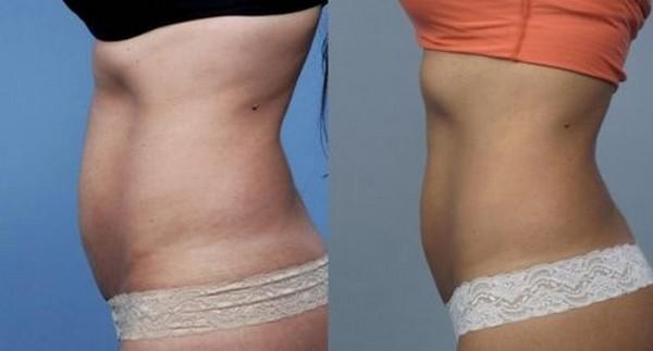 Фото до и после проведения прессотерапии №1