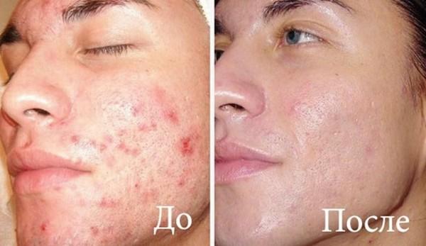 Фото до и после озонотерапии №1