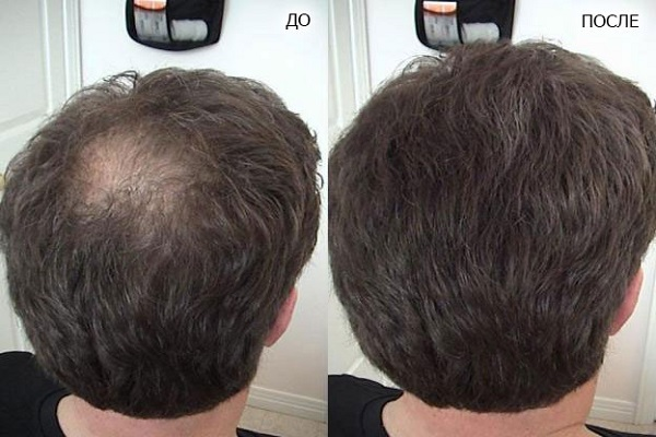 Фото до и после биоревитализации волос №2