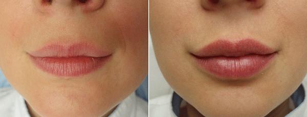 Фото до и после введения препарата «Гиалуформ» №2