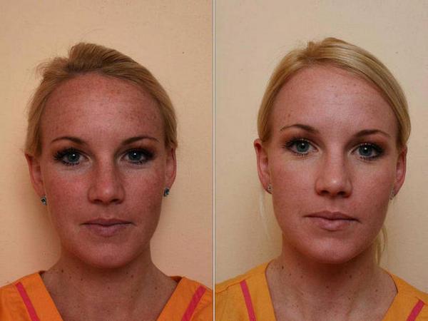 Фото до и после проведения плазмолифтинга №2