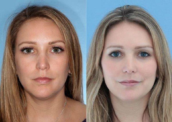 Фото до и после биоревитализации гиалуроновой кислотой №2