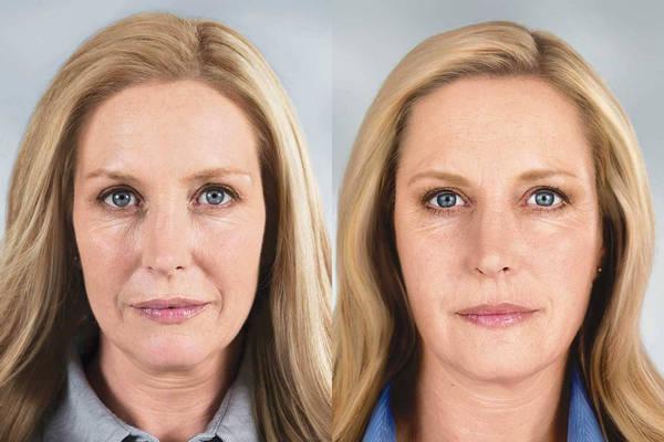 Фото до и после введения инъекций пептидов №3
