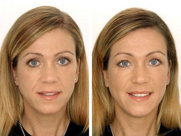 Фото до и после введения препарата «Гиалуформ» №3