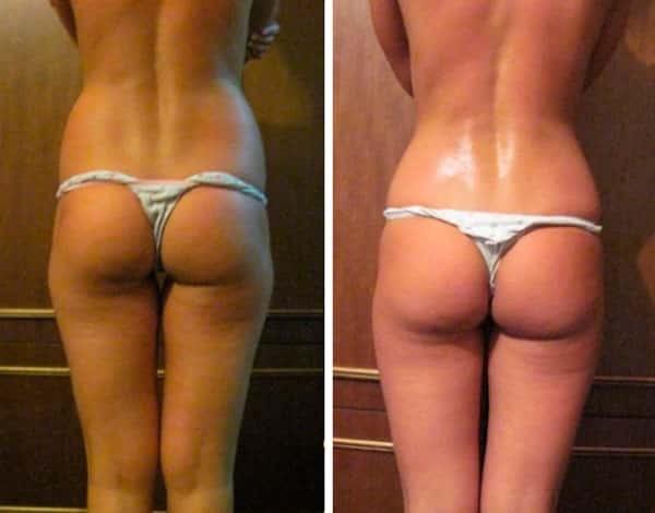 Фото до и после проведения прессотерапии №2