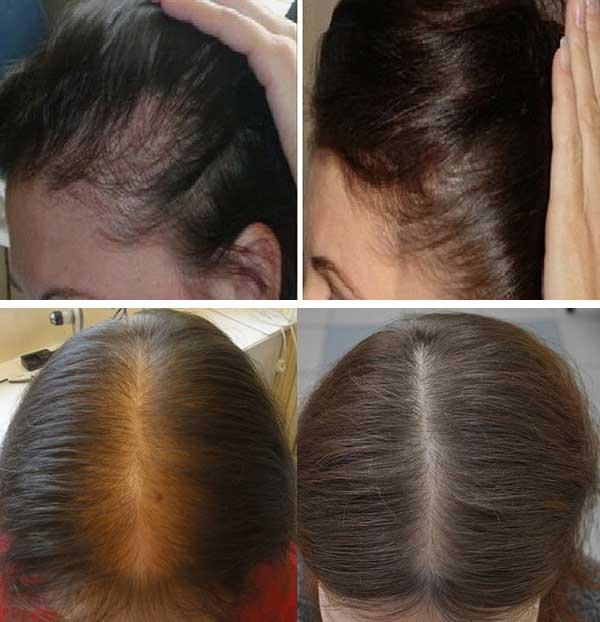 Фото до и после биоревитализации волос №3
