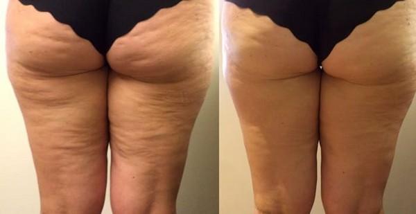 Фото до и после проведения прессотерапии №3