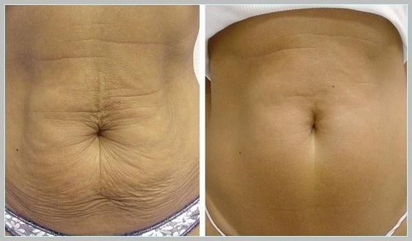 Фото до и после озонотерапии №3