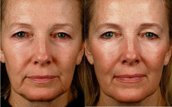 Фото до и после проведения плазмолифтинга №3