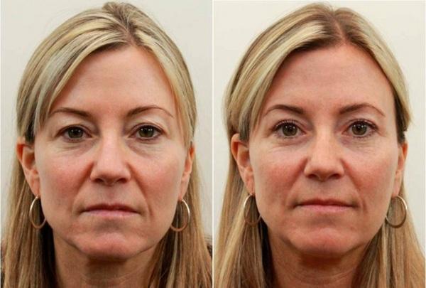 Фото до и после биоревитализации гиалуроновой кислотой №4