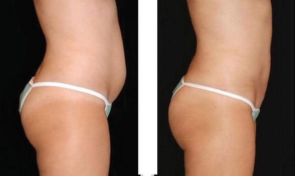 Фото до и после проведения прессотерапии №4